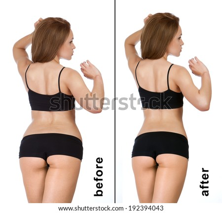 Treatment program for women, weight loss. Figure of a young girl before and after - stock photo