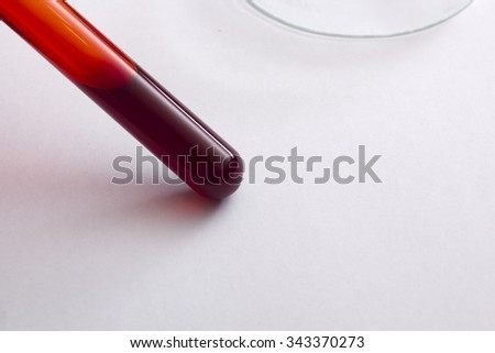 Tubes of blood - the analysis on the presence of contaminants, disease or doping. - stock photo