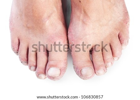 two male feet with eczema isolated on white background - stock photo