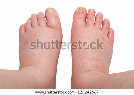 two swollen legs with fungal infection isolated on white background - stock photo