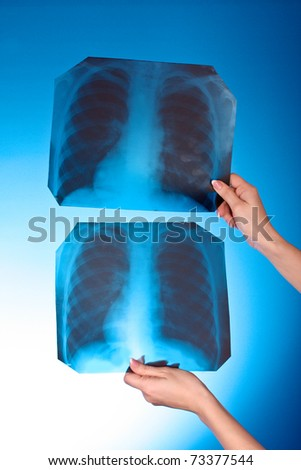 Two X-Ray Images of chest on blue background in hand - stock photo