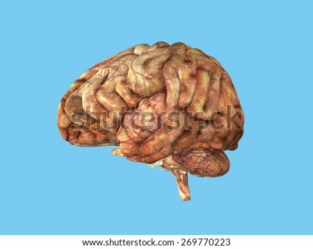 Unhealthy Brain: View from side featuring frontal lobe, parietal lobe, occipital lobe, temporal lobe, cerebellum and brain stem. - stock photo