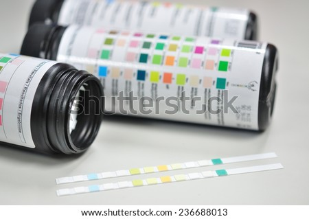 urine paper strip test - stock photo