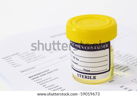 Urine sample in container with report - stock photo