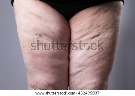 Varicose veins closeup. Thick female legs on a gray background - stock photo