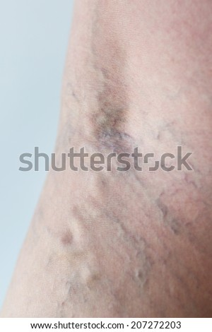 Varicose veins on a leg, close-up - stock photo