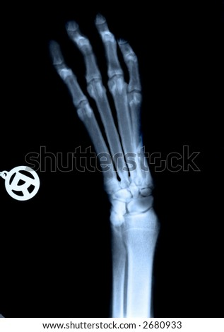 Very detailed x-ray of dog's foot - stock photo