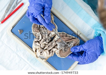View from above of an anatomy student analyzing a bisected sheep heart using a probe to look at the internal structure of the ventricles and valves - stock photo