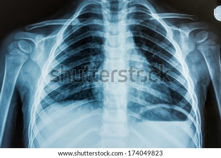 View of a child x-ray film, taken to examine the lungs - stock photo