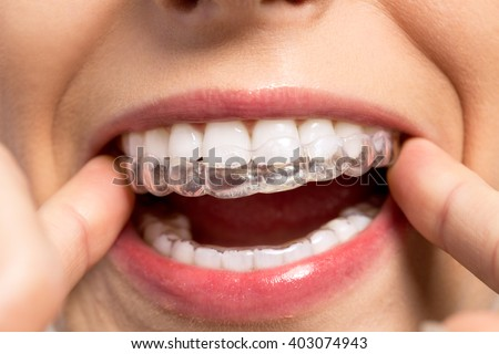 Wearing orthodontic silicone trainer close up - stock photo