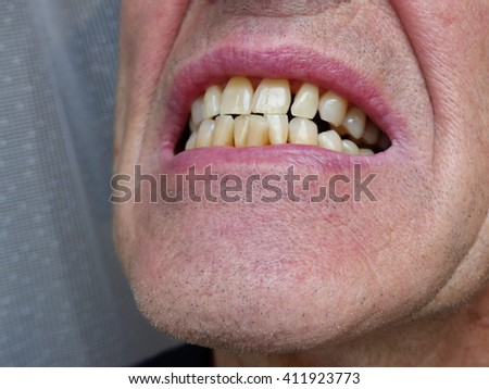 Well-preserved teeth of a 70 year-old man in Germany  - stock photo