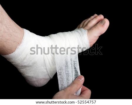 White medicine bandage on human injury foot - stock photo