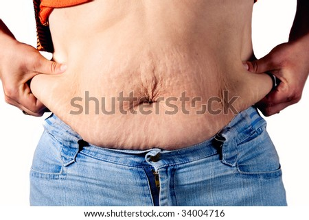 woman checking her cellulite - stock photo