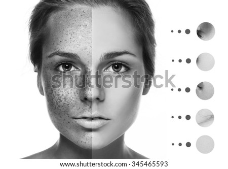 Woman freckle half-face happy young beautiful studio portrait  healthy skin pure black and white - stock photo
