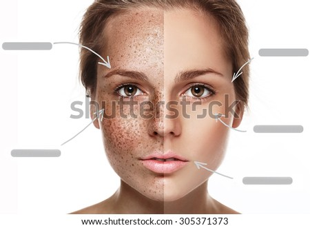 Woman freckle half-face happy young beautiful studio portrait with healthy skin half - stock photo
