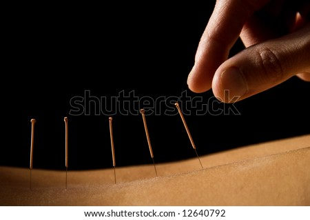 Woman getting an acupuncture treatment in a spa - stock photo