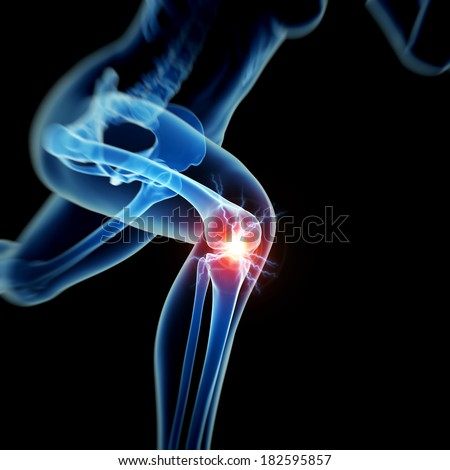 woman having acute pain in the knee - stock photo