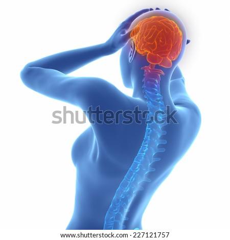 Woman headache migraine neurologic disorder on white - stock photo