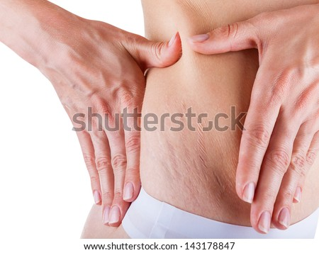 Woman is testing the skin on his stomach on broadly, the presence of stretch marks - stock photo