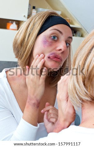 woman looking her bruises and injuries in front of the bathroom mirror - stock photo