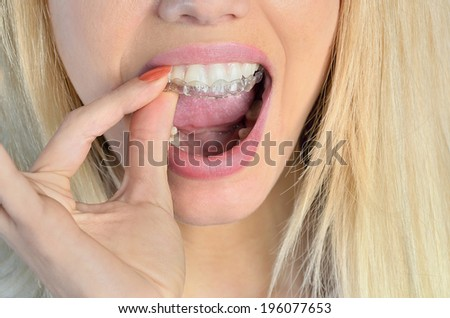 Woman put mouth guard on teeth - stock photo