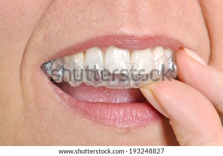 Woman putting in her invisible braces - stock photo