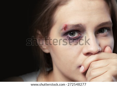 Woman. Sad and depressed young girl looking at the camera. - stock photo