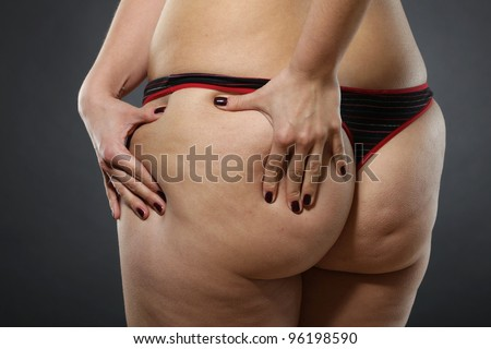 Woman showing Cellulite - bad skin condition - stock photo