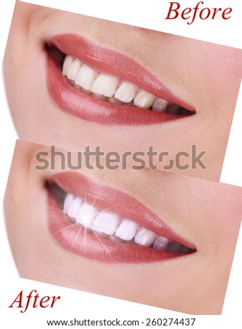 Woman smile before visit dentist and after visit, close up - stock photo