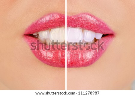 woman teeth before and after whitening - stock photo