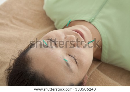 Woman to the acupuncture in the face for beauty - stock photo