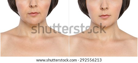Woman with and without  aging singes, double chin,  nasolabial folds before and after cosmetic or plastic procedure, anti-age therapy  - stock photo