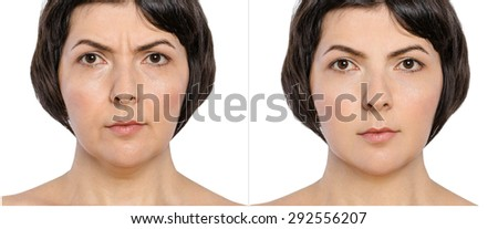 Woman with and without  aging singes, double chin, worry wrinkles, nasolabial folds before and after cosmetic or plastic procedure, anti-age therapy  - stock photo