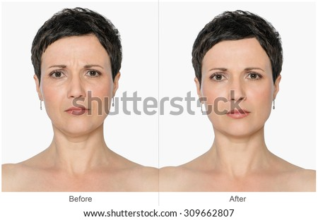 Woman with and without aging singes, double chin, worry wrinkles, nasolabial folds. Before and after cosmetic or plastic procedure, anti-age therapy, lifting, botox - stock photo