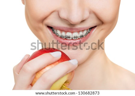 woman with brackets on teeth close up - stock photo
