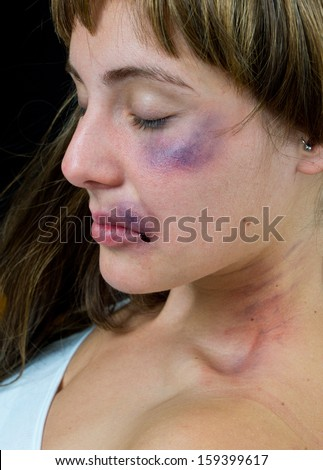 woman with bruises victim of domestic violence or accident - stock photo