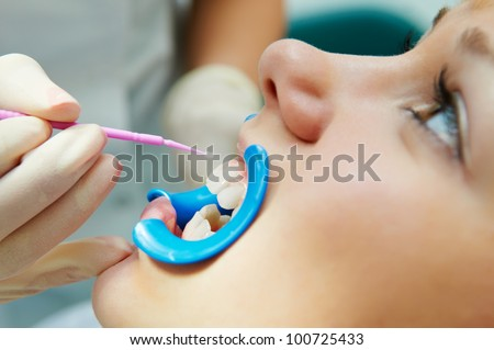 woman with open mouth during dental procedure of teeth protective lacquer covering - stock photo