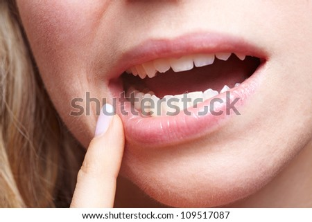 Woman with pain in her gums holding finger to mouth - stock photo