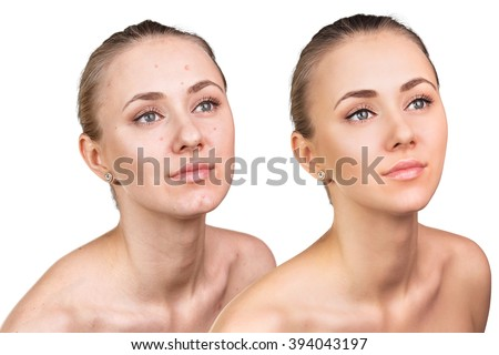Woman with problem skin on her face - stock photo