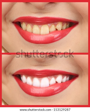 Women smile with teeth: whitening - bleaching treatment , before and after - stock photo