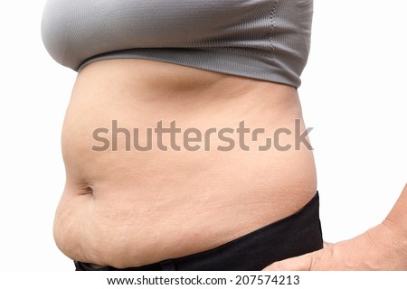Women with fat belly and stretch marks. - stock photo