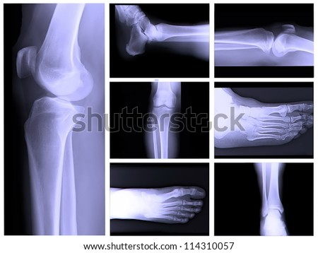 X-ray collage with body parts - stock photo