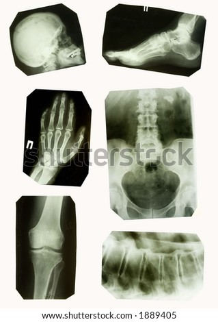x-ray collection - stock photo