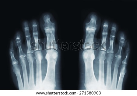 X-ray feet - stock photo