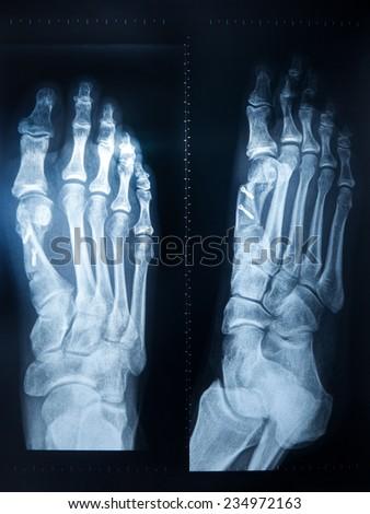 X-ray feet with metal sticks - stock photo
