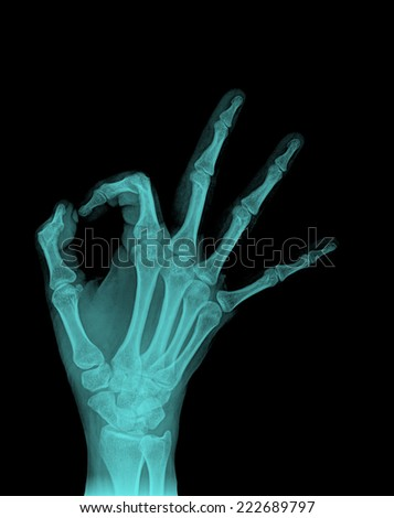 X-ray film of finger fracture - stock photo