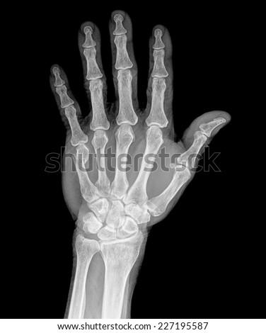 X-ray hand - stock photo