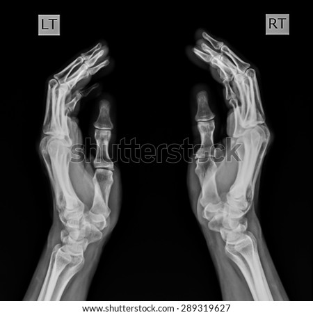 X-Ray Hand. - stock photo