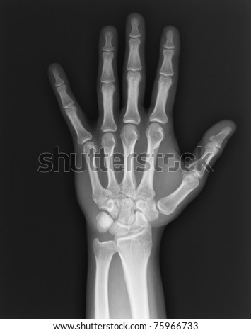 X-ray hand / Many others X-ray images in my portfolio. - stock photo