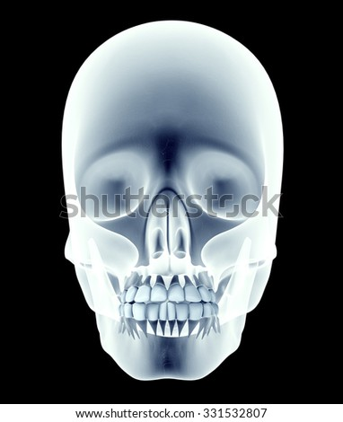 x-ray image of a skull with teeth. - stock photo